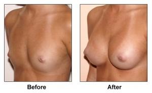 breast_augmentation_4