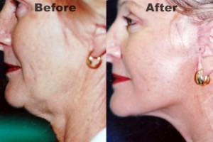 complete-facelift-surgery-before-and-after