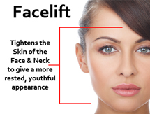 what-is-a-facelift-dr-halaas